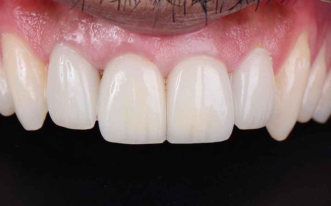Veneers, Implant & Crown by Dr. Eyass
