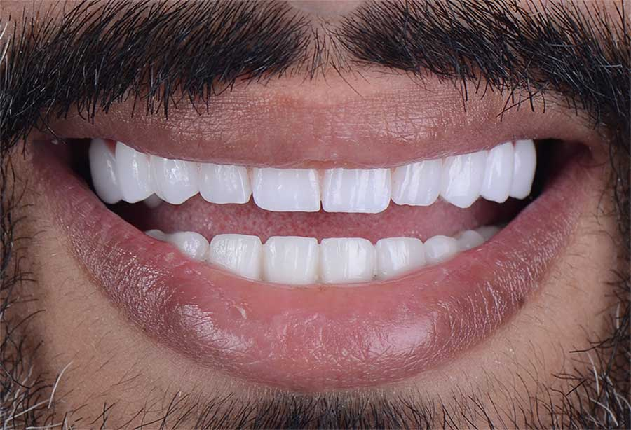 Full Mouth Implants
