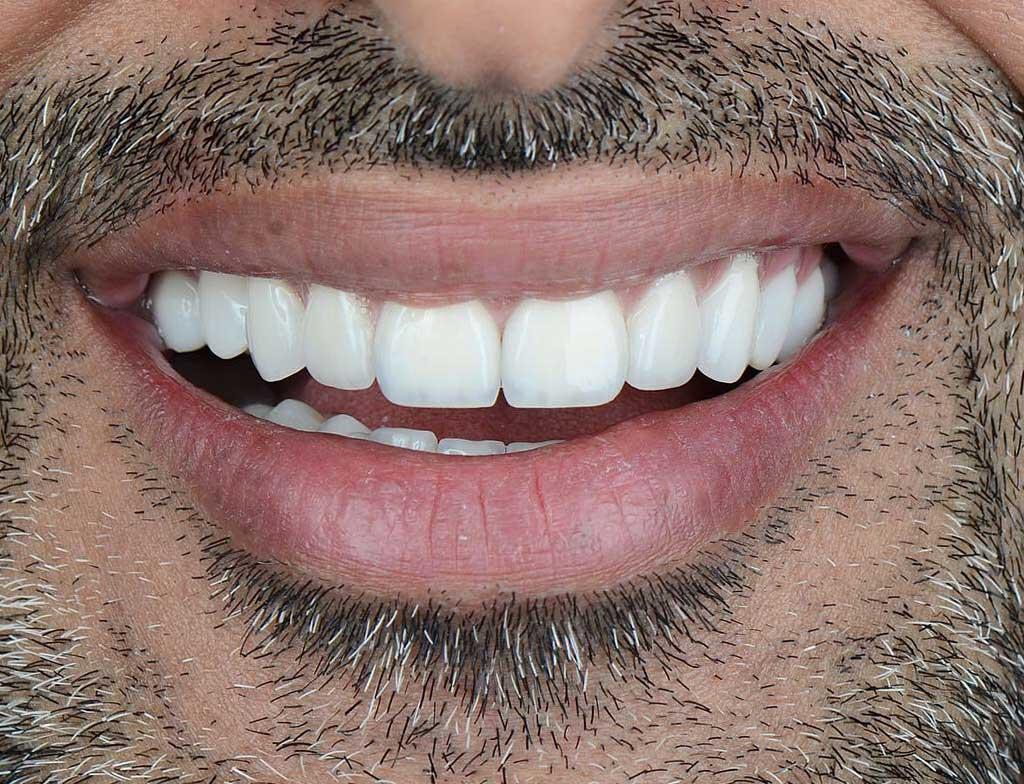 Dental Veneers - After