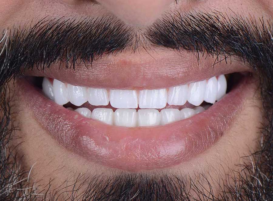 Full Mouth Implants - After