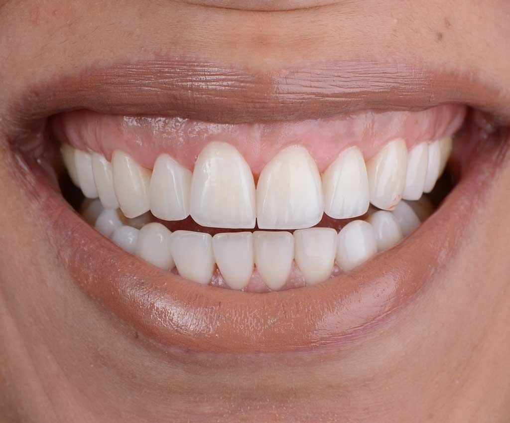 Gum Correction - After