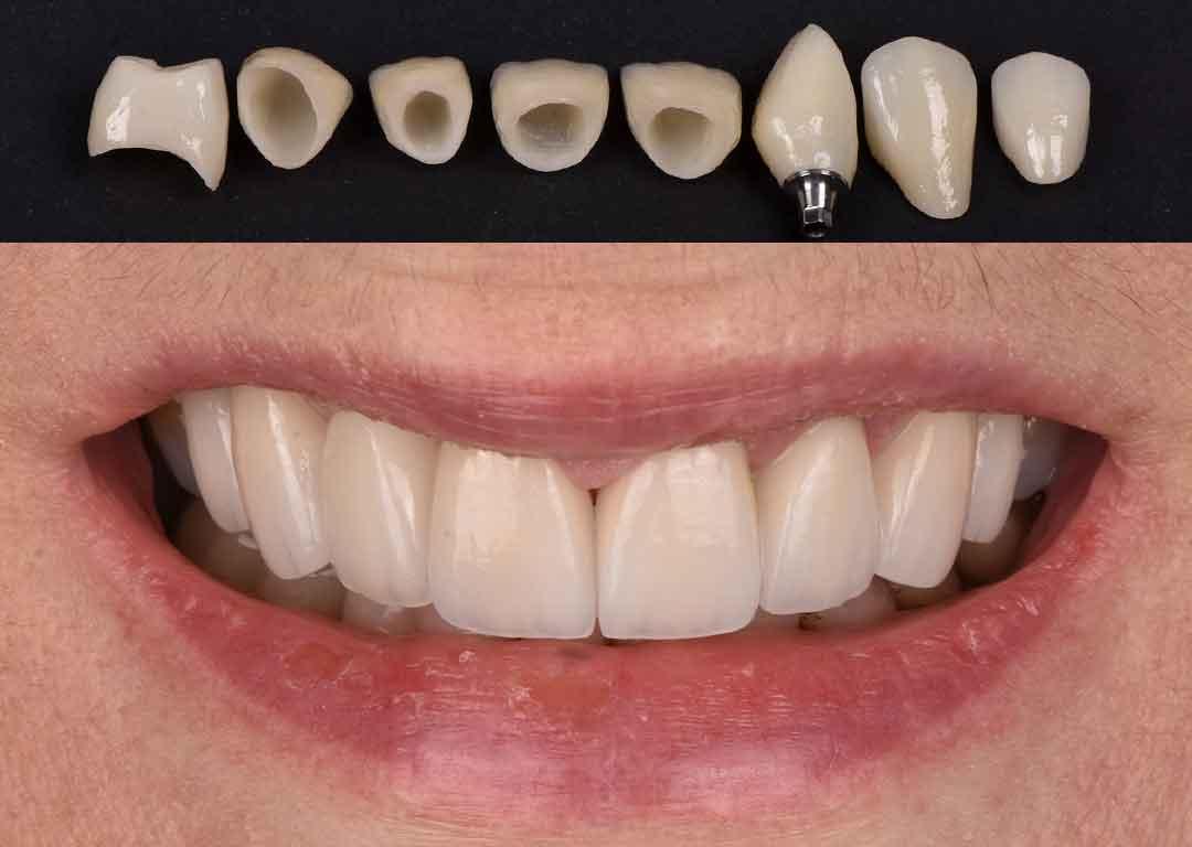 Veneers, Crowns and Implant Crown