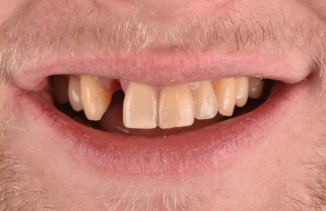 Before Single Dental Implant