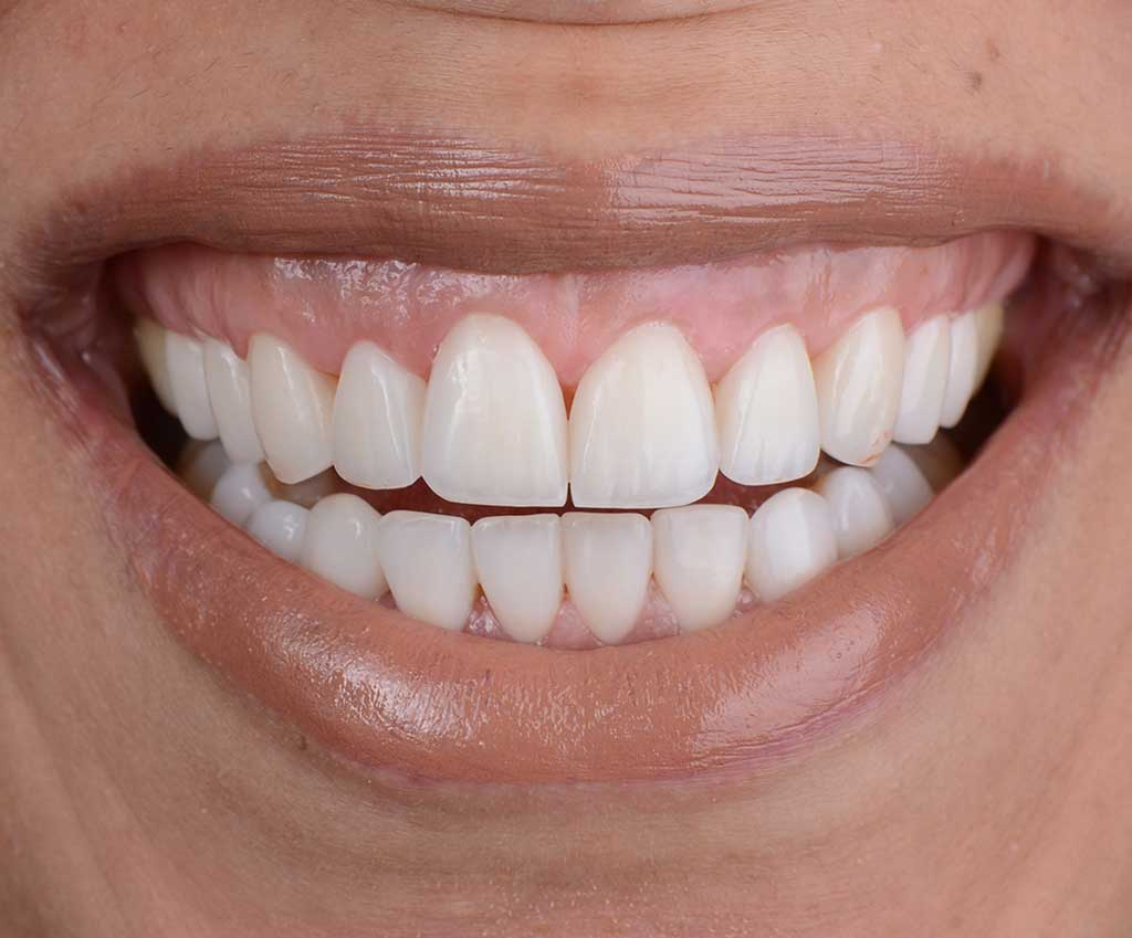 After Hollywood Smile Makeover