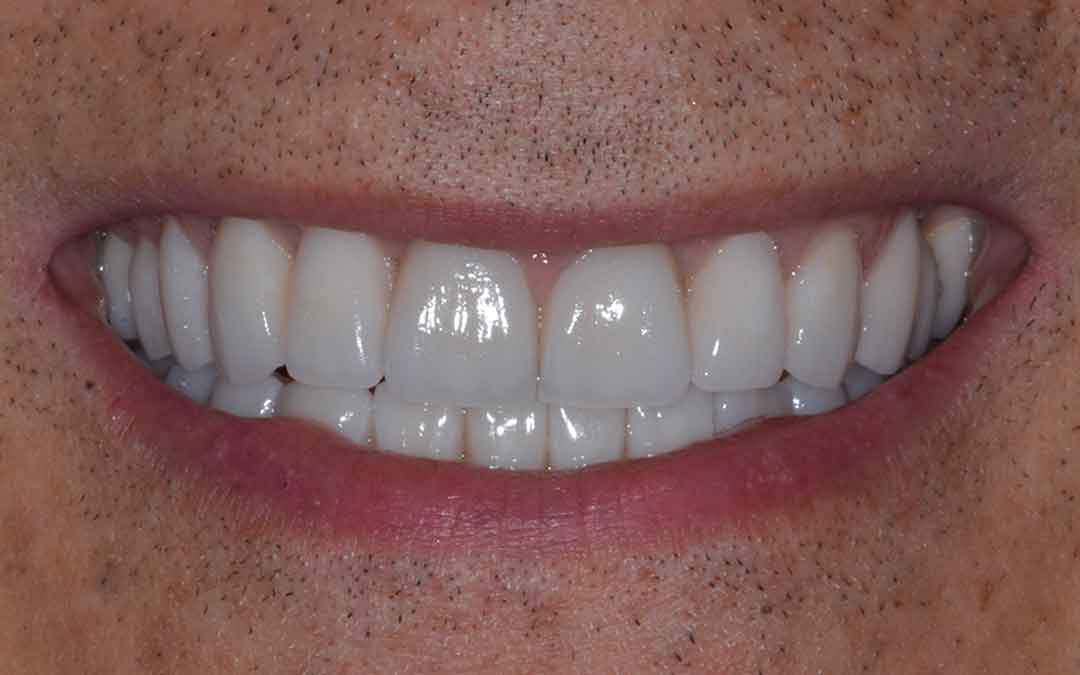 Hollywood Smile Makeover